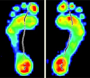 Special Offer: Free Footscan