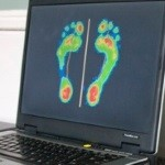 Special Offer: Free Footscan and Consultation